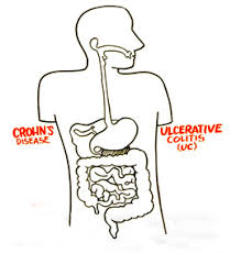 drawing illustrating Crohn's Disease and ulcerative colitis and how they affect internal digestive system
